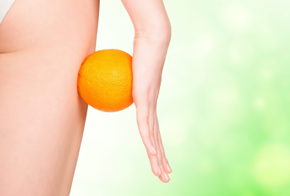 Cellulite is a myth!